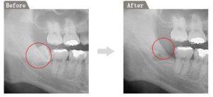 安心・安全な「親知らずの抜歯」を行います|経の画像