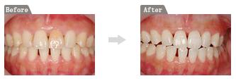 黒く変色した歯を白く