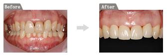 歯の「色と形と歯並び」をセラミックで改善