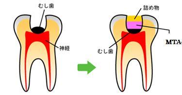 歯を削らず薬で治療するMTA治療法/歯の神経を抜かずに治療します|世田谷区・経堂・千歳船橋の歯科/歯医者