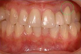 歯肉(歯茎)の退縮(下がる)が気になっているの画像