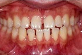 前歯・すきっ歯の部分矯正(プチ矯正)を安いおの画像