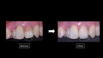 前歯のセラミッククラン治療|世田谷区経堂・千の画像