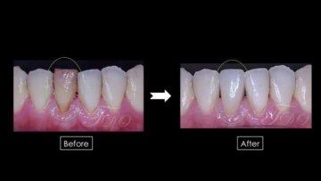 前歯のファイバーポストコア&セラミックスクラの画像
