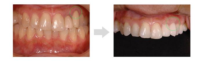 歯肉の退縮による「見た目の悪化」を 歯茎再生療法で改善